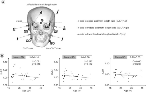 Measurement of the vertical length asymmetry on the coronal plane. (A) A mid-sagittal line was constructed by joining the landmarks, namely the glabella 'G', nasion 'N', and top of the nasal spine 'TNS', to form the y1-axis and perpendicular line with origins at G, defined as the x-axis on the frontal view. The xULR, e/f, represents the vertical length asymmetry of the LO from the x-axis on the CMT side in comparison with that on the non-CMT side. The xMLR, g/h, represents the vertical length asymmetry of the ZY. The xLLR, i/j, represents the vertical length asymmetry of the GO on the CMT side in comparison with that on the non-CMT side. (B) Linear regression analyses between xULR, xMLR, xLLR, and the subjects' ages. LO, latero-orbitale; CMT, congenital muscular torticollis; ZY, zygonion; GO, gonion.