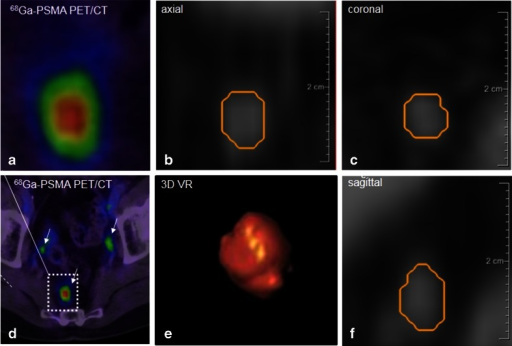 Image processing of a PSMA-positive node. The node corresponding to the positive 68Ga-PSMA PET images (a, d SUVmax 5.82) is represented on the CT images (b axial, c coronal, and f sagittal planes). It was segmented using Fraunhofer MEVIS software enabling automated quantification of the dimensions (short-axis diameter 4.19 mm, long-axis diameter 6.76 mm). e Volume rendering of the segmented node also provided by the software