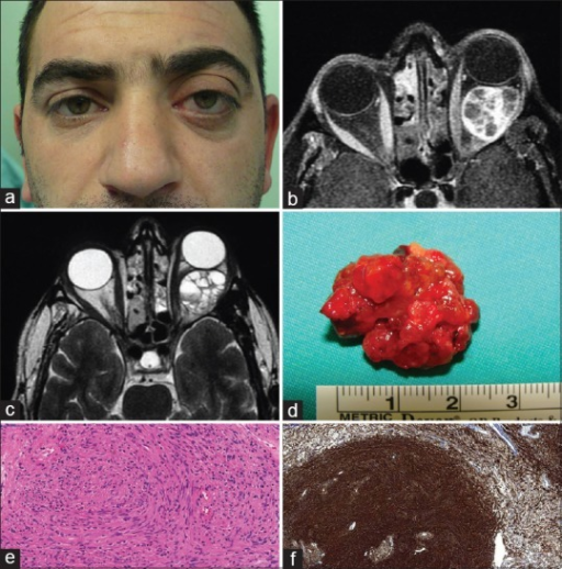 A 31-year-old male with a 5 years history of proptosis in the left eye. (a) Facial photograph shows left proptosis. (b) T1-weighted magnetic resonance imaging demonstrates a cavitary mass in the left orbit. (c) T2-weighted magnetic resonance imaging shows fluid-fluid levels in the tumor. (d) Gross photo of the excised tumor shows yellowish hemorrhagic tumor fragments. (e) Histopathologic examination demonstrates schwannoma consisting mostly of spindle shaped tumor cells with elongated nuclei forming bundles and cellular areas without obvious mitosis (Antoni A pattern) (H and E, ×400). (f) Immunohistochemically, the tumor cells diffusely stain positive with S-100 (S-100, ×100)