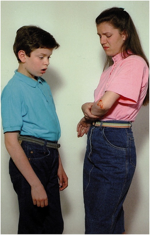 A girl is showing her scar to a boy (Stark, 1998).