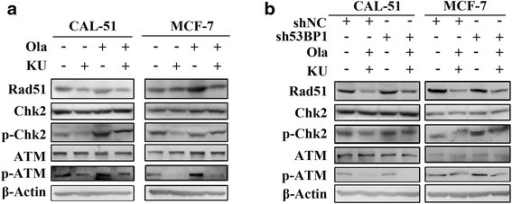 KU55933 reduced Olaparib induced ATM-Chk2 pathway activation and Rad51 up-regulation while knockdown 53BP1 supressed these effects. a, Western blot assay showed the protein level of Rad51, Chk2, phospho-Chk2 (Thr68), ATM and phosphor-ATM (Ser1981) in CAL-51 and MCF-7 cells after treatment with 10 μM Olaparib, 10 μM KU55933 and their combination respectively for 48 h. b, Western Blot assay showed the protein level of Rad51, Chk2, phospho-Chk2 (Thr68), ATM and phosphor-ATM (Ser1981) in CAL-51-sh53BP1, MCF-7-sh53BP1 cells and their control-transfected cells after synergistic treatment with 10 μM Olaparib and 10 μM KU55933. All experiments were performed at least three times