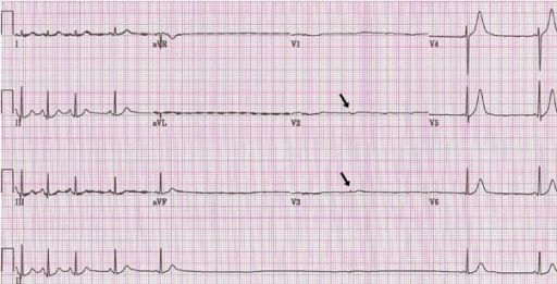 P Wave Asystole Prolonged asystole (5....