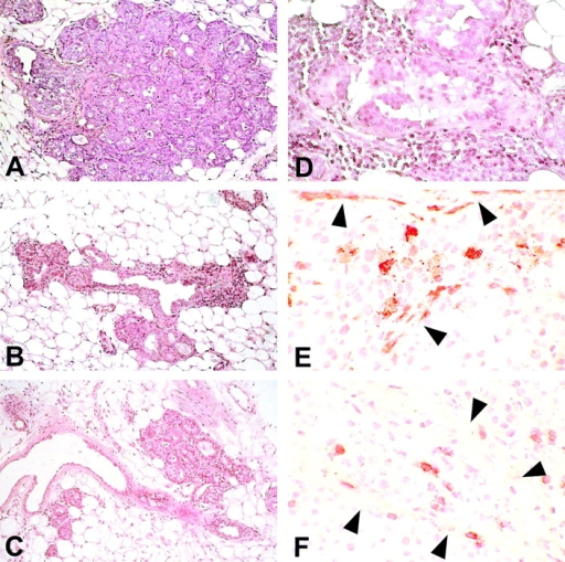 Morphologic and immunohistochemical analysis of mammary glands. Histology shows that at week 15 the mammary tissue of control mice (A) contains numerous foci of atypical hyperplasia with areas of lobular carcinoma in situ; the hyperplastic and neoplastic epithelial cells occupy and fill out all the ductal-lobular structures. The hyperplastic foci found in mice receiving IL-12 (B) or Neu/H-2q cells plus IL-12 (C) are less numerous and prosperous than in control mice and surrounded by an evident reactive infiltrate. At 27 wk in mice treated with Neu/H-2q cells plus IL-12 the few surviving foci of hyperplasia (D) are surrounded by an evident infiltrate composed of reactive cells that sometimes are found within epithelial cells after crossing or damaging the basal membrane. Immunohistochemistry reveals that granulocytes (E) and CD8+ lymphocytes (F) are present not only in the stroma but also inside the lobular structure after crossing the damaged basal membrane (arrowheads). A–C, original magnification: ×200; D, original magnification: ×400; E and F, original magnification: ×630.
