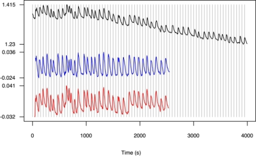 Time series Nod1 given as an example of a raw Nod Factor induced Ca2+ spiking trace and after detrending using a moving average (blue) and Empirical Mode Decomposition (red).The Y axis is a fluorescence ratio between Ca2+ sensitive and Ca2+ insensitive dyes. The X axis is time in seconds.