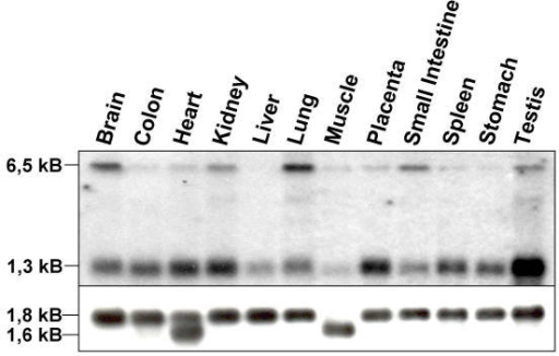 SAP30L mRNA expression in human tissues. Northern hybridization to a multi-tissue northern blot showed that a 1.3 kB transcript is expressed in all tissues examined, with higher expression in the testis and weaker in the liver and lung. A transcript of size 6.5 kB was abundantly expressed in brain and lung but not at all in liver and stomach. The lower panel shows the control hybridization with an β-actin specific probe.