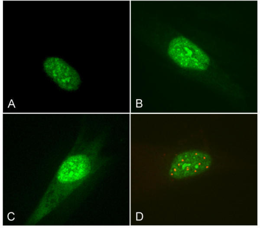 Transfection of the different EGFP fusion constructs to IMR-90 fibroblasts. A) The wild-type SAP30L concentrates in small dense bodies in the nuclei. B) The nuclear localization of the fusion protein with only the NLS of SAP30L provides evidence for the functionality of the nuclear localization signal. C) Mutating the NLS disrupts the nuclear localization of the protein to some extent. D) Anti-PML-antibody staining (red) of wild-type SAP30L-transfected cells shows that the nuclear concentrates are other than PML bodies.