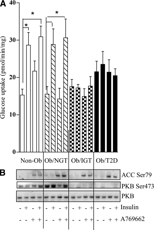 Effect of pharmacological AMPK activation on insulin signaling in human myotubes. Myotubes were treated with 100 μmol/L A769662 and/or 100 nmol/L insulin for 30 min before (A) assaying 2-deoxyglucose uptake or 100 nmol/L insulin for 10 min before (B) immunoblotting to assess the phosphorylation status of PKB/Akt and ACC and the total protein abundance of PKB/Akt. Values are mean ± SEM from five separate experiments; glucose uptake values were performed in triplicate. *P < 0.05 vs. control cells.