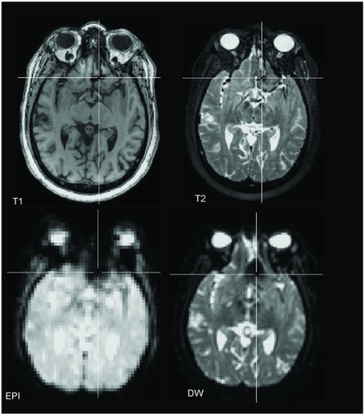Appearance of Aneurysm Clip Artifact on Different Aligned MRI Sequences. Axial slices taken in the same imaging plane for Patient A are displayed in the axial plane (radiological convention) with the crosshair placed in the center of the clip artifact.