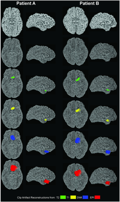 Example Clip Artifact Volume Reconstructions in Relation to Cortical Surface Models. Basal and mid-sagittal views of each patient's cortical surface model are shown shaded by curvature (top row) and as a point cloud (second row). Superimposed on the point could displays to aide artifact visualization are the reconstructed clip artifact volumes colored according to MR sequence in descending order by clip volume as percentage of brain volume (T2 = green, T1 = yellow, DWI = blue, EPI = red). These artifact volumes are 0.27%, 0.56%, 1.70%, and 4.67% respectively for Patient A (two columns on left), and 0.48%, 1.04%, 3.62%, and 4.74% respectively for Patient B (two columns on right).