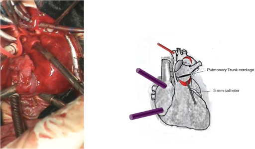 A photograph and diagrammatic schema of the introduction of a 5 mm catheter through the opening of the pulmonary trunk, toward the pulmonary arteries. We placed the pulmonary trunk cerclage around this catheter using cardiac tape sutured with 5-0 Prolene.