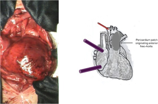 A photograph and diagrammatic schema. The implantation of a valved bovine pericardium patch from the anterior opening of the pulmonary trunk to the aortic arch, extending to the beginning of the descending aorta resulting the anterior wall of the neo-aorta.
