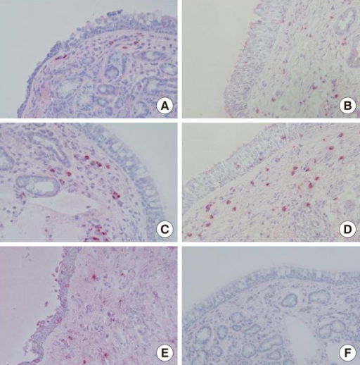 Immunoreactivity and localization of MMP-2, MMP-9, MMP-13, TIMP-1, and TIMP-2 in the nasal mucosa of PAR patients. Immunohistochemistry using the APAAP method was performed as described in the Materials and Methods section. (A) MMP-2 was expressed mainly in inflammatory cells, but also in fibroblasts, epithelial cells, and endothelial cells. (B) MMP-9 was expressed mainly in inflammatory cells, but also in fibroblasts, epithelial cells, and acinar cells. (C) MMP-13 was expressed mainly in inflammatory cells, but also in fibroblasts, endothelial cells, and acinar cells. (D) TIMP-1 was expressed mainly in inflammatory cells, but also in fibroblasts, epithelial cells, and endothelial cells. (E) TIMP-2 was expressed mainly in inflammatory cells, but also in fibroblasts and endothelial cells. (F) The negative control showed no immunoreactivity (magnification, ×200-400 HPF).