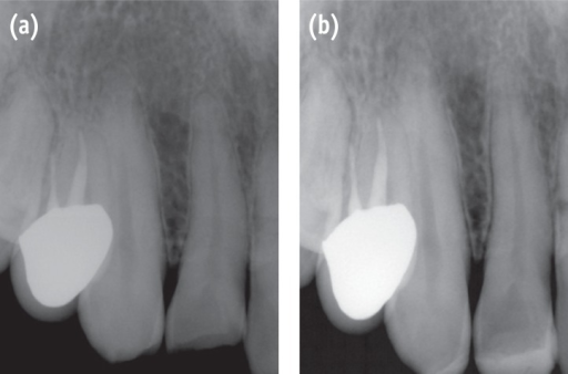 Radiographs showing crown fractures of the maxillary right lateral incisor and canine. (a) initial; (b) after composite resin build-up.