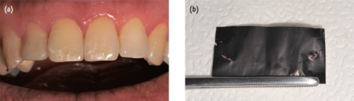 After restoration of the maxillary right lateral incisor, and compostie resin overlay on both maxillary canines. (a) anterior view; (b) articulating paper marking of eccentric movements after fabrication of canine protected occlusion using composite showing no contact on the traumatized central incisors.