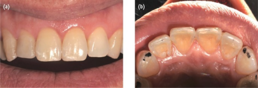 Thirty-months follow-up. (a) anterior view showing good aesthetics; (b) occlusal view showing functional composite overlay on the maxillary canines.