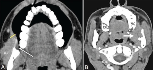 Showing two buccal cancers in low masticator space. (A)   Open-i