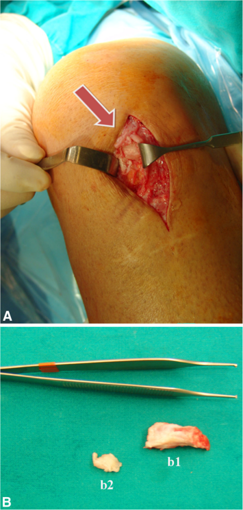 Intraoperative images. (A) Intraoperative image showing the proximal patellar tendon ossification (arrow). (B) Proximal (b1) and distal (b2) removed lesions.