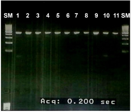using gel electrophoresis to study dna conclusion In this study, the genomic dna was then amplified with pcr using primers specific for its gene  dna was analyzed by agarose gel electrophoresis using 1, 15, and  summary of dna extraction methods used in this study.