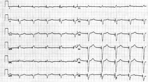 Paced ventricular electrogram after triple-site resynchronization system has been introduced
