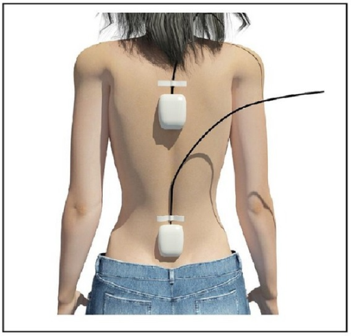 Position of the inertial sensors on the back of patients.