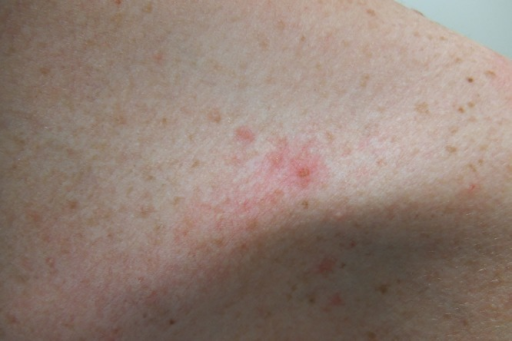 (A) Distant, (B) close and (C) closer view of the left upper chest of a woman with transient acantholytic dermatosis presenting as pruritic erythematous papules. (Copyright: ©2014 Cohen et al.)