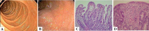 Intestinal involvement due to gluten intolerance. Colonoscopy in a healthyindividual (A), and in a patient with CD (B) highlightof intestinal villous atrophy. Intestinal histopathology on a healthy individual(C), and in a patient with CD (D) note thelymphocytic infiltrate and atrophy. The images are a courtesy from Dr. CarlosFloriano de Moraes