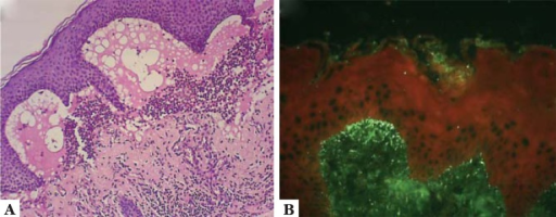 Diagnostic methods in DH: A. Skin histopathology showingsubepidermal blister with neutrophilic infiltrate in the papillary dermis;B. Direct immunofluorescence of skin fragment showing IgAdeposits along the dermoepidermal junction and on top of the dermal papillae.The image is a courtesy from Dr. Carlos Floriano de Moraes; B The image is acourtesy A B from Dr. Valeria Aoki