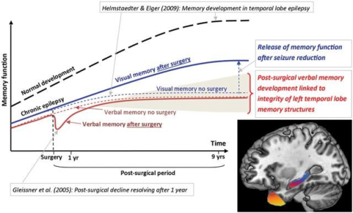 A diagrammatic overview of memory change before and after left temporal lobe surgery in children. Interpretation of our findings in the context of previous research: in dashed lines we present a schema of our findings in the non-surgical sample, and in solid lines findings from the surgical sample. Normal development is indicated with a dashed black line. Previous research from Helmstaedter and Elger (2009) showed an earlier and lower developmental peak of memory function for individuals with temporal lobe epilepsy, compared with their healthy peers. Gleissner et al. (2005) showed a short-lived decline in memory function at 3 months after temporal lobe surgery, resolving after just 1 year in children. Our findings indicate no differences in verbal memory outcome between children who undergo left temporal lobe surgery and those that do not, but indicate significant post-surgical improvements in visual memory function. Shading: Representation of the variability in the postoperative developmental trajectory of memory which may be optimized by tailoring of resections within the temporal lobe structures critical to declarative memory (brain image: showing in yellow the left temporal pole subserving semantic memory, and in red the left hippocampus subserving verbal episodic memory).