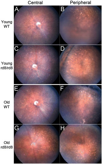Photographs of central and peripheral retina in C57BL/6N (rd8/rd8) and C57BL/6 J (wild-type) mice. A change in the distribution of fundus spots on B6-mice due to both age and the presence of the rd8 mutation is seen. Yellow spots are shown in central (A, C, E, and G) and peripheral (B, D, F, and H) fundus photographs of representative young (A-D) and old (E-H) B6-mice. Mice 2 to 8 months of age were classified as 'young', while mice 14 to 20 months of age were classified as 'old'. Note that the number of central fundus spots is increased in old age for both rd8 mutant (G versus C) and wild-type (WT) (E versus A) mice. Furthermore, rd8/rd8 mice show a marked increase in central spots compared to WT, both in the young (C versus A) and old (G versus E) age groups.