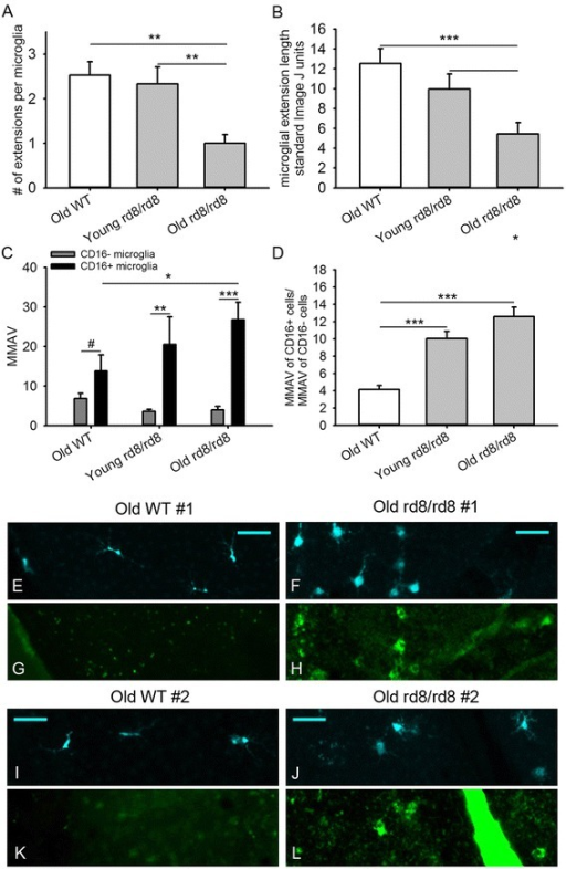 Morphological analysis of subretinal microglia/macrophages in B6-mice. There is an increased microglia/macrophages (MG/MΦ) activation morphology in the rd8/rd8 mice, which is accentuated in old age. (A) The average number of extensions per MG/MΦ cell is decreased in old rd8/rd8 mice compared to both old wild-type (WT) mice and young rd8/rd8 mice. (B) The average length of the MG/MΦ cell extensions (measured using imageJ, http://imageJ.nih.gov/ij/index.html, and expressed as standard arbitrary units) of old rd8/rd8 mice is decreased relative to both old WT mice and young rd8/rd8 mice. (C) Quantification of MG/MΦ activation using the new parameter, microglial morphology activation value (MMAV) is shown. MMAV combines several morphological changes known to be associated with MG/MΦ activation into a single value, and is defined as the area of the MG/MΦ cell body divided by the product of the number of extensions and the average extension length. MMAV is increased in FcγIII/II Receptor (CD16/CD32, abbreviated as CD16) positive cells, particularly in old rd8 mutant mice. (D). The ratio of MMAV for CD16+ to MMAV for CD16- cells is markedly increased in both young and old rd8 mutant mice compared to old WT mice. Two similar experiments were combined (see methods; n = 3 to 5 eyes per group, and 3 to 5 photographic fields per eye, containing 3 to 5 cells with intact cell body per field, which were randomly selected by a masked investigator). Examples of the ionized calcium binding adaptor (Iba)-1 (E,F,I,J) and CD16 (G,H,K,L) staining of MG/MΦ in two C57BL/6J (E,G,I,K) versus two C57BL/6N mice (F,H,J,L) are shown. Mice 2 to 8 months of age were classified as 'young', while mice 14 to 20 months of age were classified as 'old'. *P <0.05, **P <0.01, ***P <0.001, #P = 0.051.