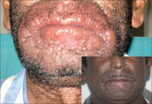 Well-defined swelling of the muzzle area with swelling of the lips (pretreatment) and posttreatment (inset)