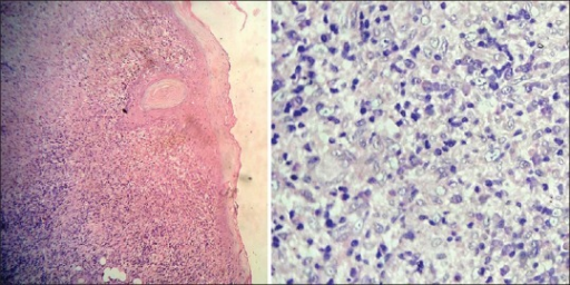 Photomicrograph revealing granulomatous infiltration (H and E, ×10) (left) and (H and E, ×40) right
