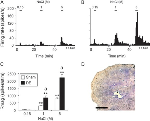 Hypertonic saline–evoked responses of neurons in deep laminae at the Vc/C1 region were increased in dry eye disease (DE) rats 14 days after surgery. (A) Example of NaCl concentration–evoked neural activity in a wide dynamic range (WDR) cell in a sham rat. (B) Example of NaCl concentration–evoked neural activity in a WDR cell in a DE rat. Scale bars above each histogram in (A) and (B) indicate stimulus period (30 seconds). Bin size = 1 second. (C) Summary of NaCl-evoked Rmag values for sham and 14d DE rats. **P < 0.01 vs 0.15 M; a = P < 0.05 vs sham. Sample sizes: sham, n = 11; DE, n = 11. (D) *Recording site; scale = 100 μm.