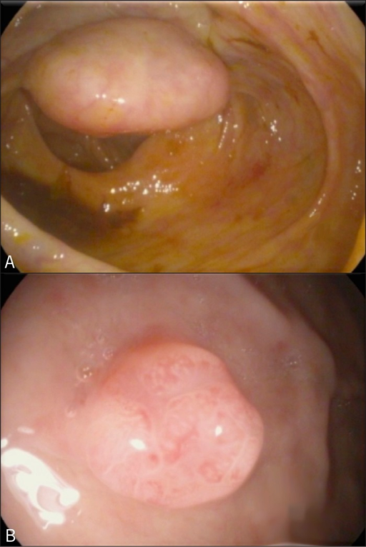 Endoscopic view of (A) colonic mass and (B) gastric polyp.