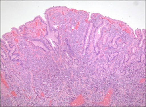 H&E stain of tissue from colonic mass.