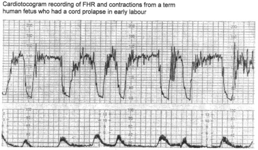 "CTG in a case of cord prolapse showing decelerations (mistakenly) classed as ""variable"" (reproduced with thanks from Westgate et al, AJOG, 2007) [1]. Although these decelerations ""look"" rapid (paper speed 1 cm/min), the ""descent time"" is well over 60 s."