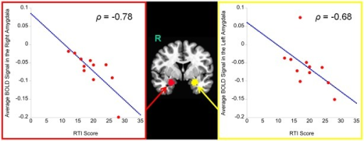 The effects of the RTI score on functional amygdala activation during decision-making of advice when subjects played the role of the Sender.The y-axis represents β coefficients. R = right hemisphere.