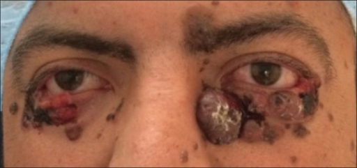 Photograph of the patient's eyes displaying innumerable basal cell carcinomas on lower eyelid bilaterally, obscuring the eyelid margin