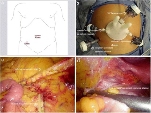 Trocar positions and surgical procedure for the experimental intervention group. a, b Trocars and instrument positions for single incision plus one port laparoscopic surgery (SILS plus one). c Ligation of the inferior mesenteric artery and vein. d The distal rectum is dissected by inserting a linear stapling device through the surgeon's dominant operation channel