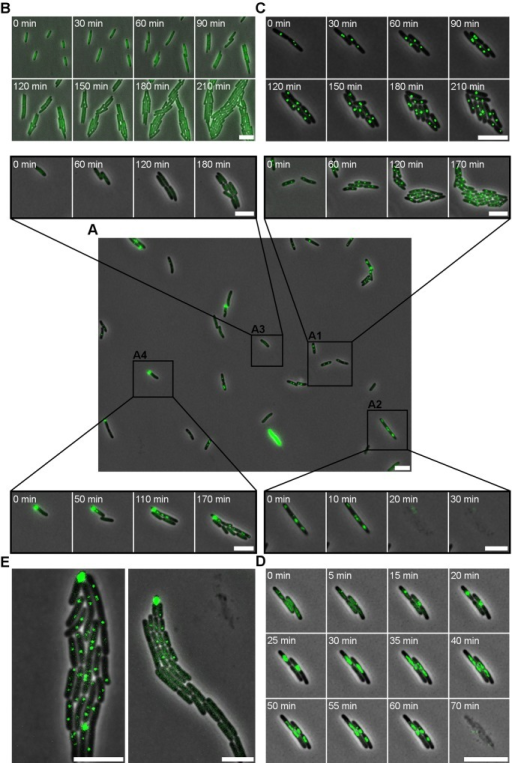 Categorizing single cell infection dynamics in the P22–S. Typhimurium model system.In the LT2ΔpSLT/pALA2705 reporter, presence of a P22 chromosome is revealed by the formation of a fluorescent GFP focus originating from GFP-ParB molecules bound to the parS sequence engineered in P22 parS. (A) The central picture shows an initial snapshot of an exponential phase population of LT2ΔpSLT/pALA2705 infected with P22 parS (MOI = 20) and further grown for 4 hours post infection in a semi-continuous culture. Time-lapse recordings of specific events are presented as a zoom in on the original snapshot as indicated by the black lines (box A1–A4). Four types of phage–host associations are seen in panel A: lysogenized cells in which the stably integrated P22 parS prophage yields a discrete GFP focus that replicates and segregates together with the host chromosome (box A1); lytically infected cells in which the replicating P22 parS chromosome yields a more diffuse and randomly dispersed GFP cloud throughout the cell prior to cell lysis (box A2); P22-free cells in which the absence of a P22 parS chromosome yields a diffuse cytoplasmic GFP fluorescence (box A3); phage carrier cells in which a polarly tethered P22 parS episome yields a coherent GFP cloud in one of the cell poles (box A4). Please note that the bright fluorescent cell at the bottom of panel A is a rare artifact. (B-D) Time-lapse series of (B) cells in the absence of P22 parS, (C) of growing cells from a P22 parS lysogen in LT2ΔpSLT/pALA2705, and (D) of LT2ΔpSLT/pALA2705 cells infected with P22 c2 parS (an obligate lytic derivative of P22 parS). (E) Snapshots from the lineages emerging from two phage carrier cells within a P22 parS infected LT2ΔpSLT/pALA2705 population, exhibiting either direct (left panel) or delayed (right panel) integration of the P22 parS prophage, resulting either in a homogeneous population of lysogens (left panel) or a heterogeneous population of both lysogens and P22-free cells (right panel). Analysis of 114 such lineages revealed the segregation of P22-free siblings in ca. 41% of cases. Phase contrast images (showing the cells) and GFP signal (reporting the P22 parS chromosomes) are merged. A 5 μm scale bar is shown at the bottom right of each panel. Timestamps are shown in the top left corners of time-lapse images. In panel D the timestamp is set at 0 min from the moment a ParB-GFP foci became visible. In all other panels the timestamp was started when first image was taken.