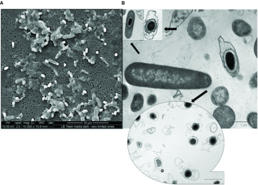 Micrographs of spore formation in chemosynthetically grown cells of R. palustris strain RP2. (A) SEM micrograph. (B) TEM micrograph.