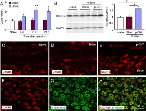 pIONL induces persistent CXCR5 expression in the TG. a The time course of Cxcr5 mRNA expression in the ipsilateral TG from naïve, sham, and pIONL-operated mice. pIONL increased Cxcr5 expression at 3, 10, and 21 days, compared to sham. *P < 0.05, **P < 0.01. Two-way ANOVA followed by Bonferroni test. b Western blot shows increased CXCR5 protein level 10 days after pIONL, compared to sham. *P < 0.05. One-way ANOVA followed by Bonferroni test. c Representative images of CXCR5 immunofluorescence in the TG. CXCR5-IR was low in naïve mice (c) and sham mice (d), but increased in the TG of pIONL mice (e). f–h Double staining of CXCR5 (f) and neuronal marker β-III tubulin (g) shows the neuronal expression of CXCR5