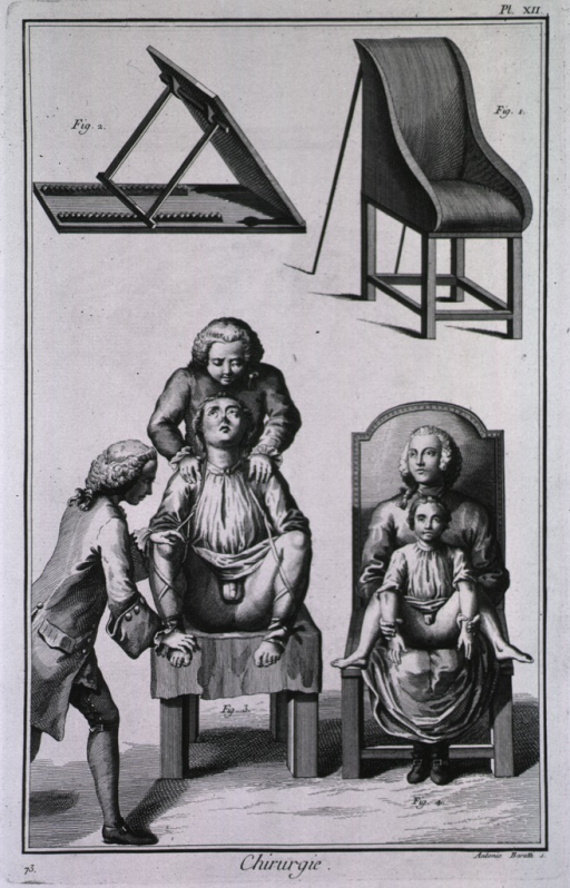 <p>Chairs for surgery.</p>
