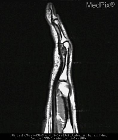 T1 weighted image demonstrates a hypointense lesion between the flexor tendon and the distal portion of the proximal phalanx.