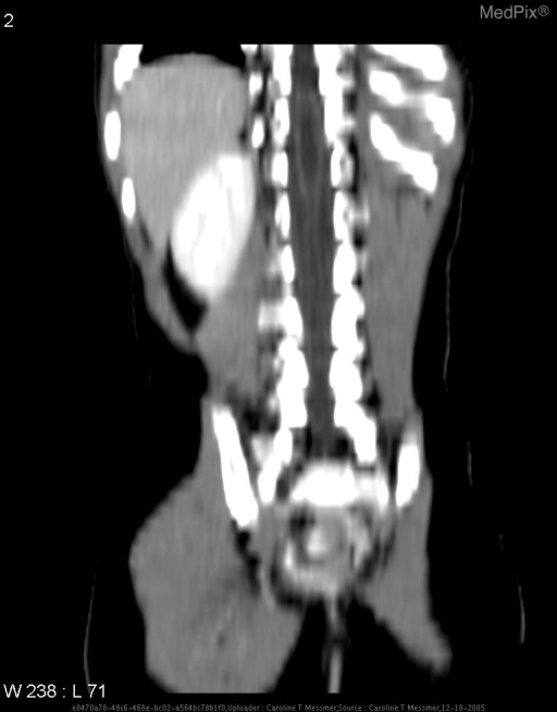 Coronal reconstructed image showing full length of syrinx, isoattenuated to the CSF.  The spinal cord extends down to the sacrum, indicating a tethered cord.