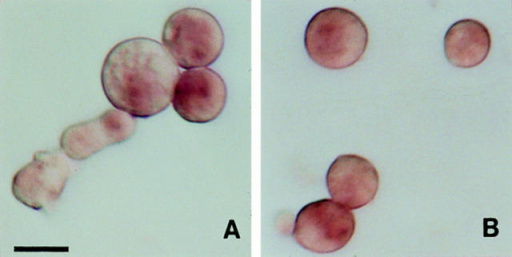 Cytochalasin D inhibited the specific localization of the  β-tubulin mRNA. Cytochalasin D was added at the beginning of  differentiation to a final concentration of 50 μg/ml. Cells were  taken at 20 and 70 min after the initiation and fixed. The fixed  cells were in situ hybridized with DIG-labeled β-tubulin cDNA  probe, and the location of the β-tubulin mRNA was determined  as in Fig. 1. (A) 20 min; (B) 70 min. Bar, 10 μm.