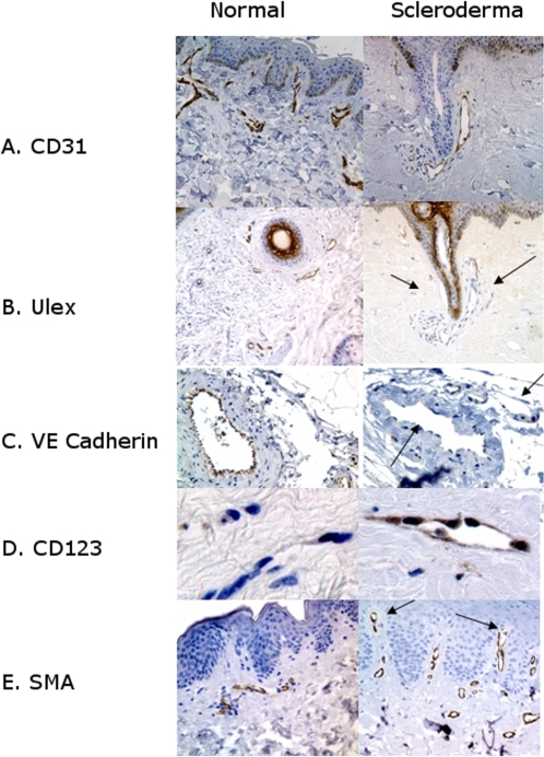 Endothelial Phenotype of Capillaries in Scleroderma Compared to Normal Controls.Markers of normal endothelium: A.) CD31 staining highlights capillaries in both scleroderma and normal controls. B.) Black arrows show Ulex europaeus lectin (Ulex) is lost from some vessels in scleroderma (compare with CD31 above). C.) VE Cadherin stain is lost from some vessels in scleroderma (arrows) whereas all vessels in normal skin are positive for VE cadherin. Both von Willebrand factor and alkaline phosphatase were similarly lost from scleroderma were similarly lost from scleroderma (data not shown) Markers of inflamed endothelium: D.) CD123, a marker for high endothelial venules, is increased in scleroderma as is E.) smooth muscle actin (SMA). In the capillaries (arrows) smooth muscle actin stain extends to the very top of the dermal papilla, unlike normal skin where smooth muscle actin stain ends at the superficial horizontal plexus (doubleheaded arrow). SMA staining is also increased in the media of vessels in the reticular dermis, (data not shown)