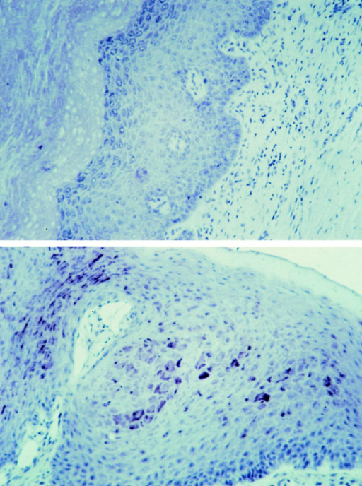 Immunohistochemical detection of cell-associated TSP1 in  human gingival mucosa. Fixed oral epithelial tissue thin section was incubated with polyclonal antiserum reactive against both TSP1 and 2 (lower  panel), or with preimmune serum (upper panel), followed by biotinylated  second antibody, and developed using avidin-conjugated peroxidase.  Brown deposits indicate sites of thrombospondin reactivity. Original  magnification, ×200.