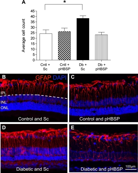 pHBSP prevents diabetes-related GFAP expression in Müller cells. Retinal sections were processed for GFAP immunoreactivity and assessed by confocal microscopy. Cntl, control; Sc, scrambled pHBSP; and Db, diabetic. A: Bar chart shows the numbers of GFAP-positive fibers crossing the IPL and INL, which is significantly increased in diabetic rats receiving scrambled peptide when compared with nondiabetic controls (*P < 0.05). pHBSP prevented the diabetes-related increase in GFAP, and there was no significant difference between this group and the nondiabetic groups. Data are mean ± SEM; n = 6 per group. B–E: Retinae from nondiabetic and diabetic groups treated with pHBSP or scrambled peptide exhibit GFAP immunoreactivity within astrocytes and a subpopulation of Müller cells. More extensive GFAP was observed in the Müller cells crossing the IPL and INL (depicted by dashed line) in the diabetic animals that received the scrambled peptide. This was reduced in the diabetic animals receiving the pHBSP peptide. (A high-quality digital representation of this figure is available in the online issue.)