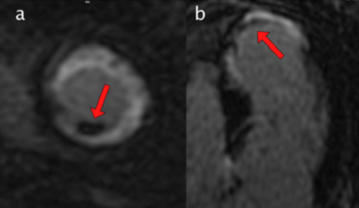 Gadolinium enhanced cmr viability image a left for Apical mural thrombus
